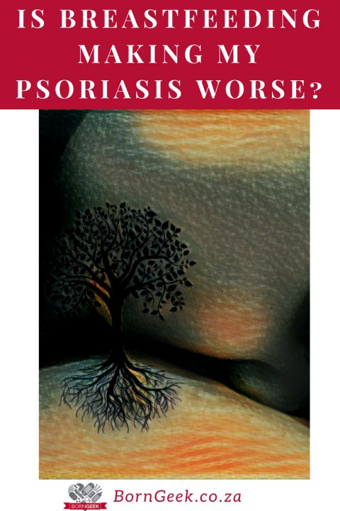Is breastfeeding making my psoriasis worse?